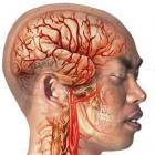 69439-migraine-en-kruiden